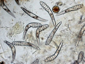 demodex5